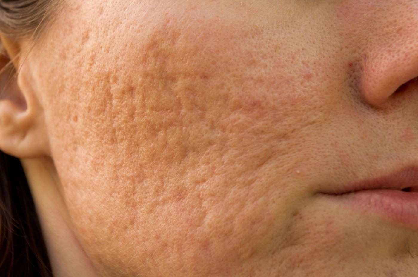 How to Treat (and Avoid) Acne Scars